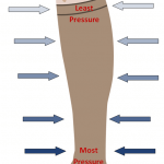Pressure stocking at Applied Biomechanics
