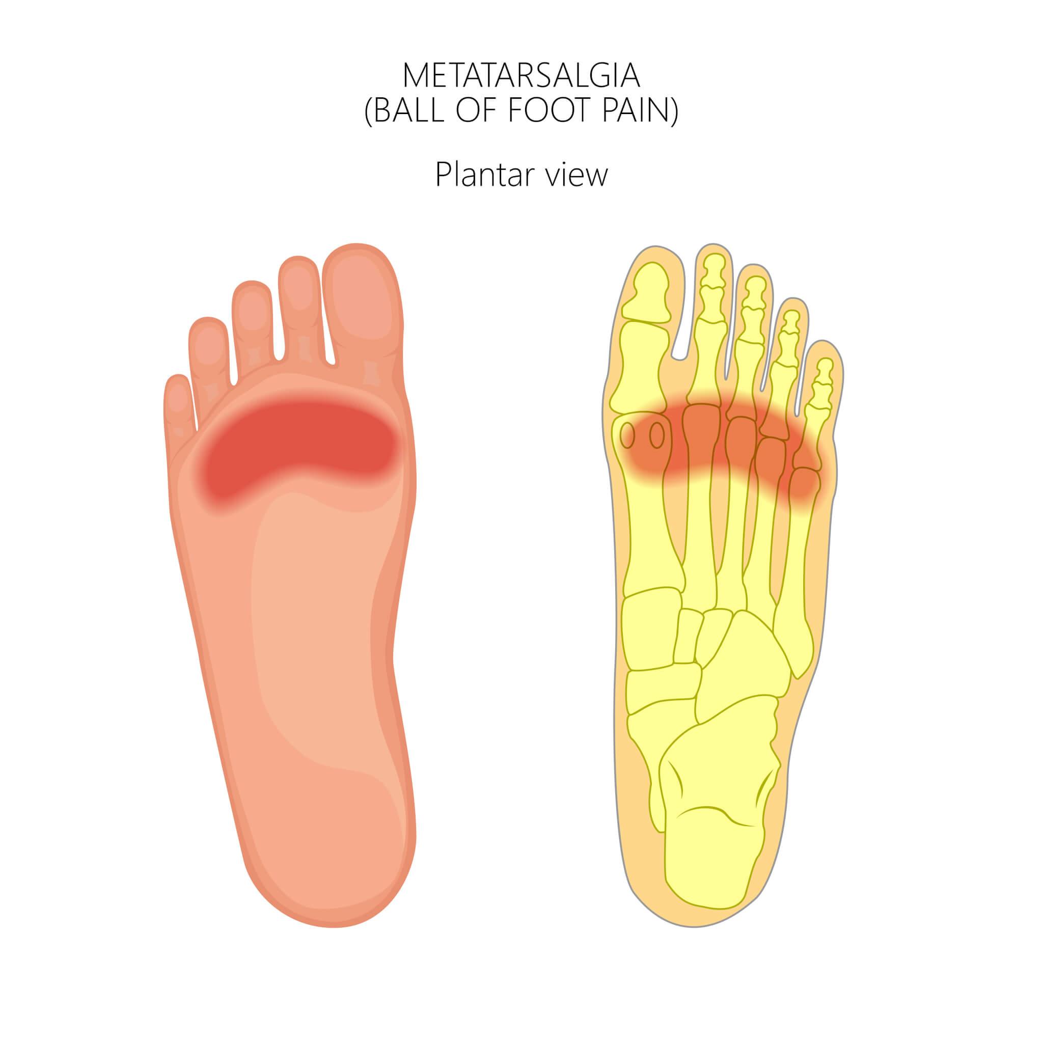 what is metatarsalgia applied biomechanics orthotics