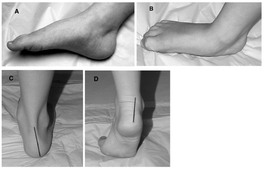 Pediatric flat foot by Applied Biomechanics in Guelph